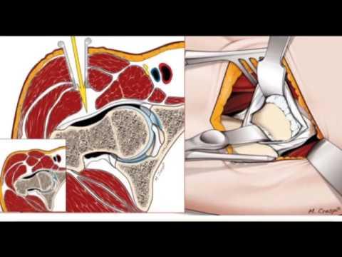 Step 1 2 3 osteocondrosi