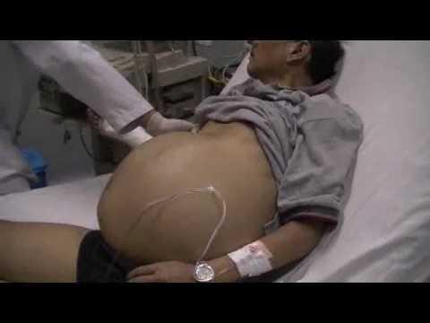 Übertragung von Gesundheit über Hypertonie