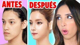 CIRUGIAS PLASTICAS COREANAS EXTREMAS - ANTES Y DESPUES ⚡️CAMBIOS DE LOOK EXTREMOS!!   Mariale