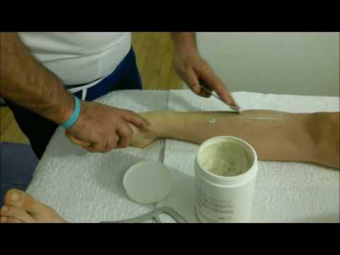 Ragioni di thrombophlebitis e il suo trattamento