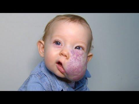 Cum să pui un copil cu bețe