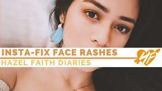 Overnight Fix to Face Rashes || Hazel Faith Diaries