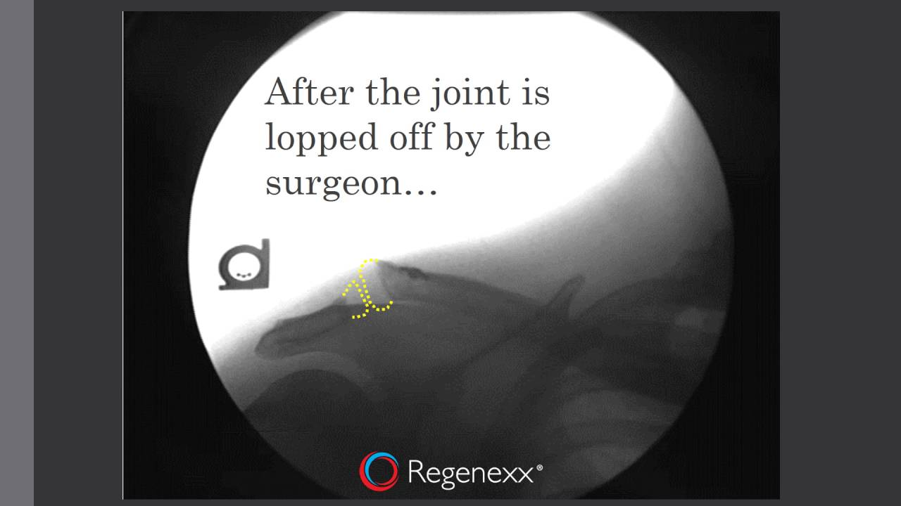 maxresdefault - Do You Need Surgery for an AC Joint Separation in the Shoulder?