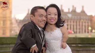❤️️காதலுக்கு கண்ணில்லை என்று நிரூபித்த ஜோடிகள்❤️️ unusual couples prove that love is blind