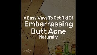 6 Easy Ways To Get Rid Of Embarrassing Butt Acne Naturally