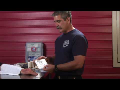 Video First Aid Tips : How to Treat Second & Third-Degree Burns