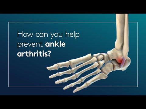 Artrita genunchiului 4 etape