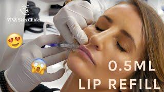 0.5ML LIP REFILL | NATURAL LOOKING FULL LIPS | LIP FILLERS | VIVA Skin Clinics