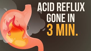 Reduce your Acid Reflux / Heartburn in just 3 Minutes! 🔥