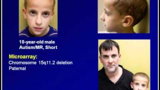 Genetics of Autism From Chromosomes to Mitochondria.flv