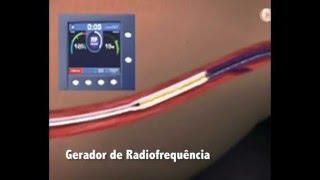 Tratamento de Varizes por Laser