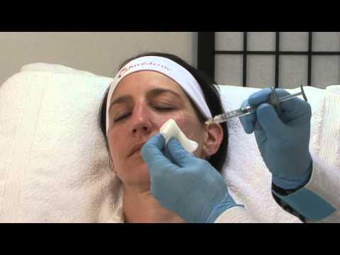 Les masques contre les rides et les oedèmes sous les yeux