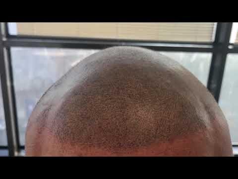 Maschera di vitamina per capelli nicotinic acido