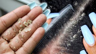 BIG FLAKES! Scalp Scratching And Picking   Satisfying Dandruff Removal ASMR