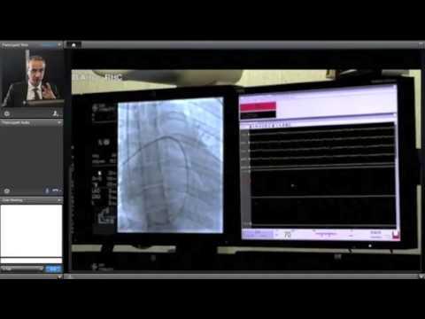 Discinesia biliare sui sintomi di tipo ipertoniche