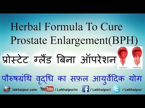 Prostata Problémy
