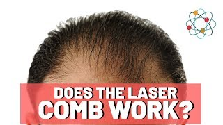 Laser Combs For Hair Loss - Is It Worth It?