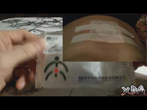 youtube Zb Prostatic Navel Plaster - пластыри от простатита