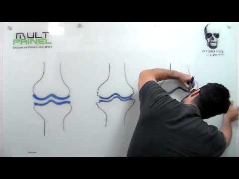 Articolazioni del ginocchio e dellanca