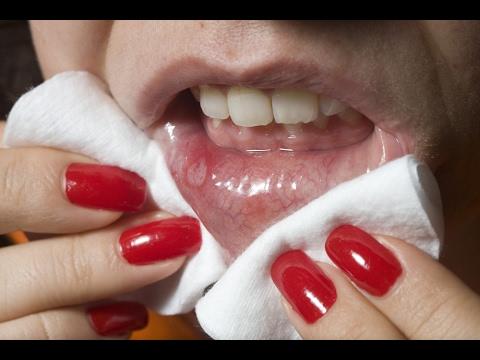 Ekzoderil cream para sa mga bata mga review