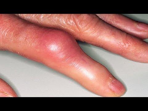 Pinioane de tinctură pentru dureri articulare