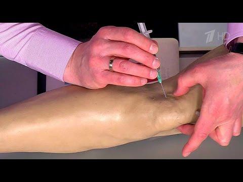 Плоско-вальгусная деформация коленных суставов