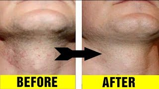 How to Get Rid of Razor Bumps Fast At Home|Home Remedies For Bumps