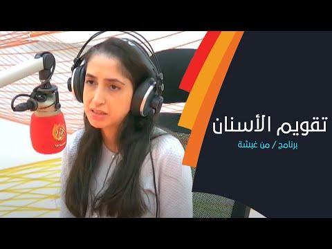 تعرف على أجوبة الأسئلة الشائعة لتقويم الأسنان مع د. نادية أبو الخير من عيادة آراك الطبية