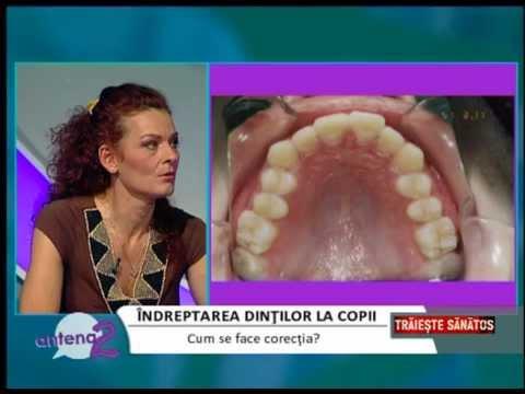 Dr. EMILIA MILICIN – Antena2 – Metode de îndreptare a dinților la copii 20-02-2014
