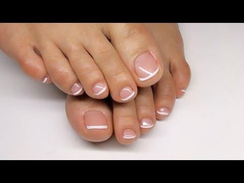 Jak usunąć guzek z palca