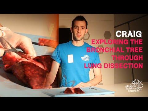 Hipertenzija galiu valgyti kivi