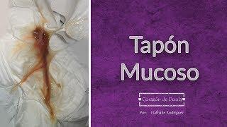 1cc205275 Embarazo Que Es El Tapon Mucoso Sc Tu Revista De Salud. Save. Descargar Mp3  De Expulsion Del Tapon Mucoso Gratis Buentema Org