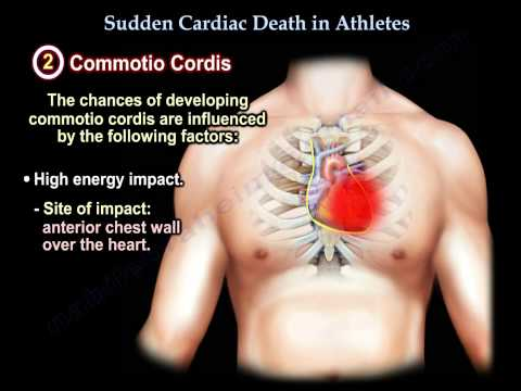 Sudden Cardiac Death In Athletes - Everything You Need To Know - Dr. Nabil Ebraheim