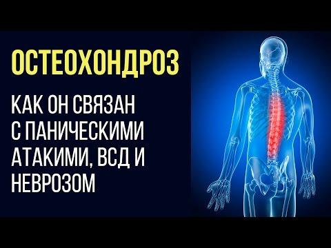 Средства от остеофитов в коленном суставе