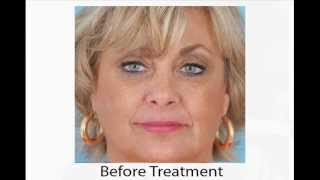 Facial Filler Experience with Dr. Anil Shah