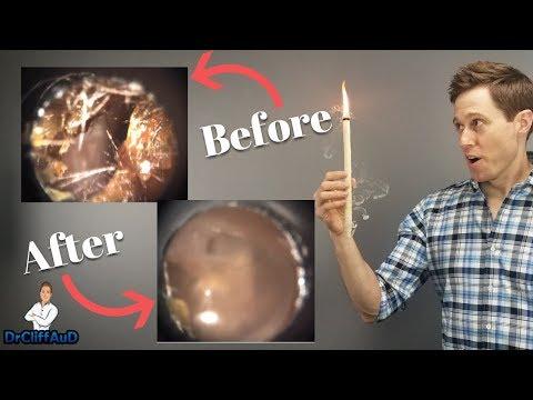 Stimulate the prostate itself