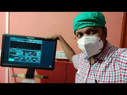 Hitachi Arietta 65 Diagnostic Ultrasound Machine