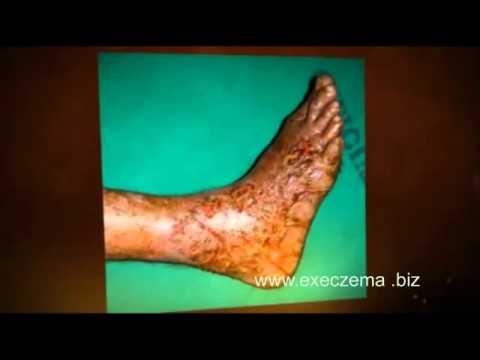 Dieta di dermatite di atopic e trattamento