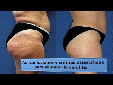 El principio del adelgazamiento a la reducción del estómago