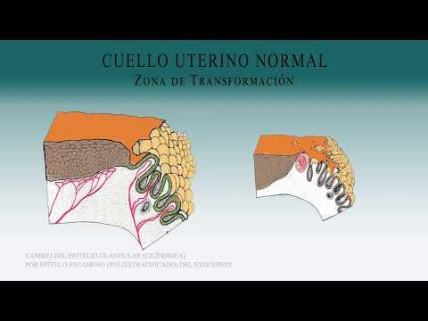 Papilloma virus verruche viso