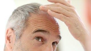 Vindecarea alopeciei: episodul 1