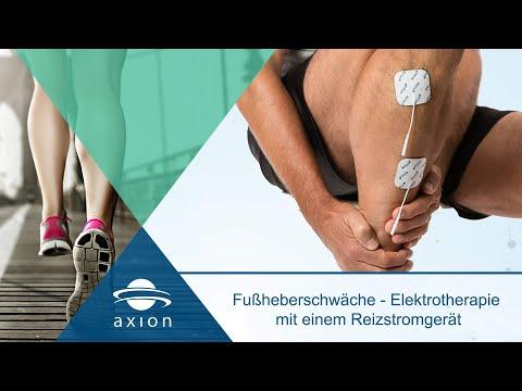 Fußheberschwäche - Elektrotherapie mit einem Reizstromgerät