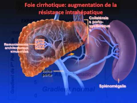 Exception de lhypertension pulmonaire
