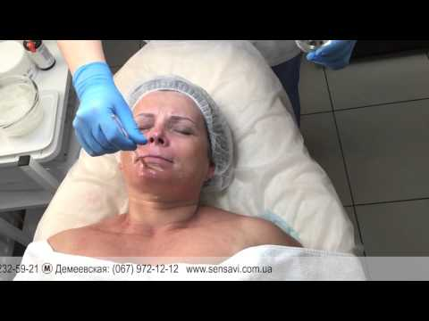 Пилинг лица в клинике медицинской косметологии