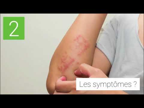 Le psoriasis les signes de la photo le traitement