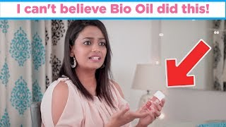 Bio Oil: Review, Benefits, Uses | MomJunction Hacks