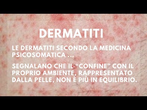 Cura di psoriasi in Miass