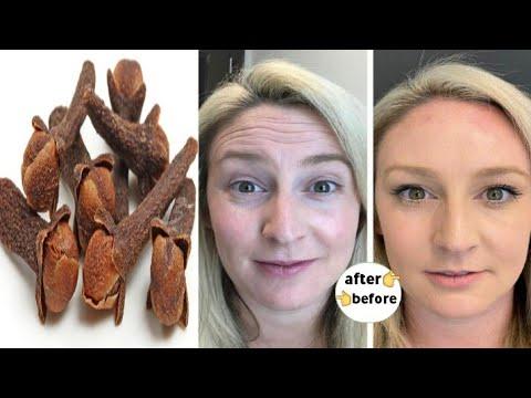 Tratament de helmint pentru viermi