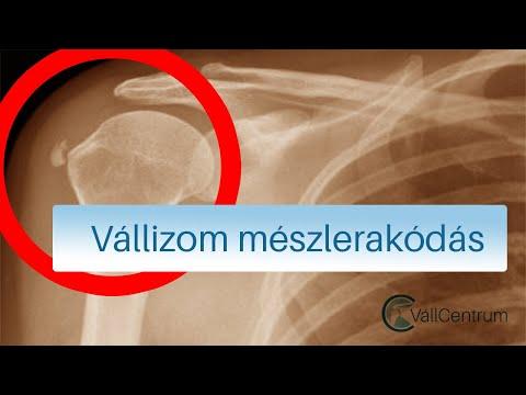 Gyógyszer ízületi fájdalmak sportolók számára