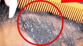 FLAKES FOR DAYS   Dry Flaky Scalp UP CLOSE ASMR